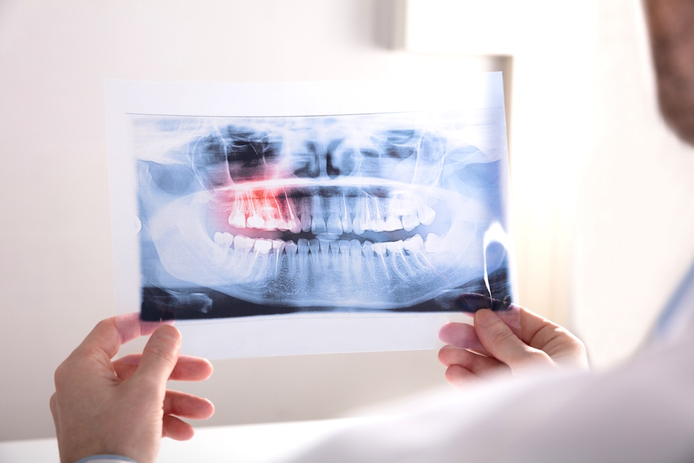 Wisdom Teeth Removal: Everything You Need to Know | Dr ...